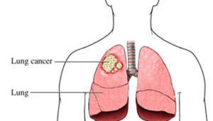 Inositol Prevents Lung Cancer