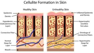 6 Effective Tips to Banish Cellulite