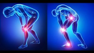 Hyaluronic Acid and Healthy Joints