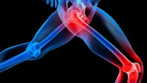 4 Supplements for Joint Health